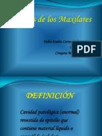 Quistes de Los Maxilares1