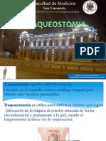 Traqueostomia - Yancarlos Chocce-unmsm