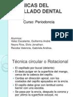 Tecnicas Del Cepillado Dental[1] (1)