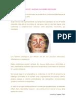 lasinusitisysusimplicacionesdentales-121114153619-phpapp01