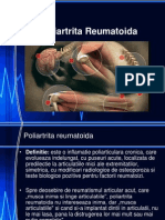 C3. Poliartrita Reumatoida.ppt