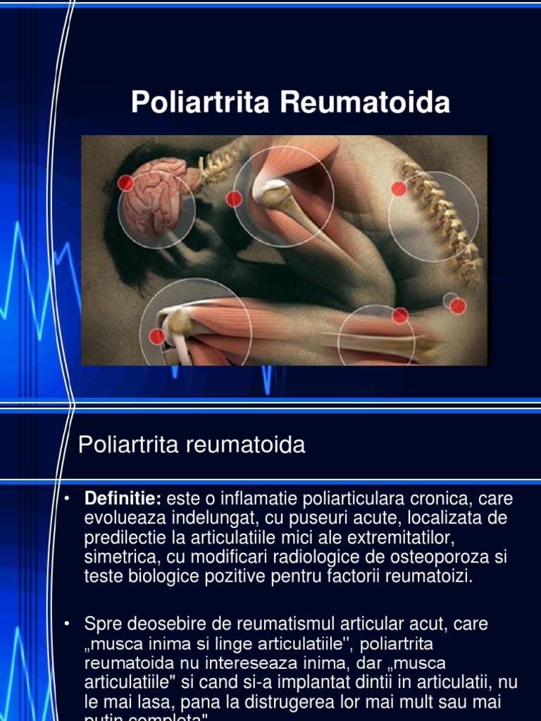 eczema cronica tratament