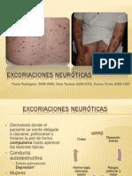 Excoriaciones neuroticas