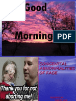 congenital abnormalities of face.ppt
