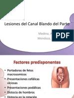 Lesiones del Canal Blando del Parto.pptx