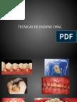Tecnicas de Higiene Oral