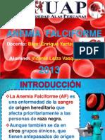 Anemia Falciforme Expo-laiza