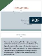 Hematuria