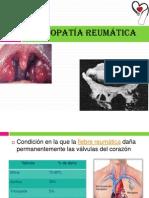 cardiopatia reumatica