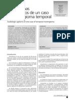 Meningioma Temporal