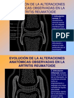 A, Reumatoidea. 2013