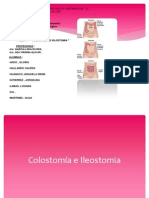 colostoma-130116151924-phpapp01