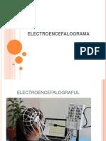 Electroencefalograma.epilepsie