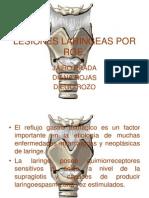 Lesiones Laringeas Por Reflujo Gastroesofagico