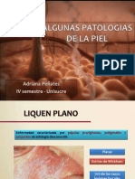 Algunas Patologias de La Piel