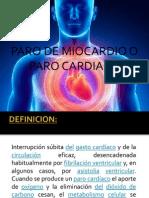 Paro de Miocardio
