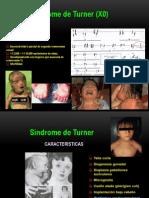 Indrome de Turner
