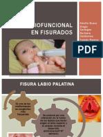 Terapia Miofuncional en Fisurados 3