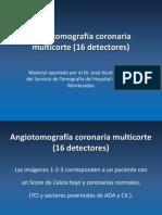 Angiotac Coronaria 16 Detecto