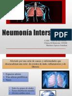 nuemonia intersticial.pdf