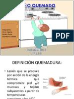 NIÑO QUEMADO