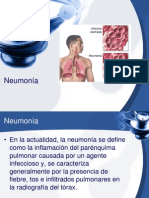 Neumonía.ppt