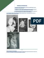TEHNICILE OSTEOPATICE