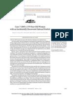 case of Adrenal nodule in a 59 yrs old women.pdf