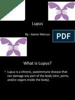 Lupus Power Point Fact Sheet
