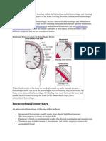 Hemorrhagic strokes include bleeding within the brain.docx