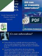 tuberculoza.ppt