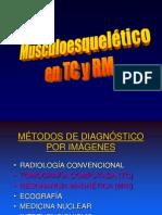 Musculoesqueletico Tac
