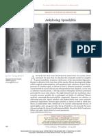 Ankylosing Spondylitis NEJM 2008