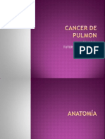 CANCER pulmon.pptx
