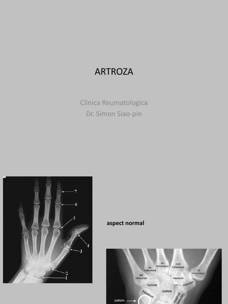 artroza eroziva a mainilor