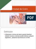 Enfermedad de Crohn00