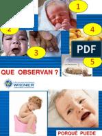 Signos de Alarma Del r.n-ii.