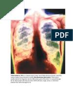 Tuberculosis or TB