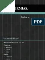 Fotodermias