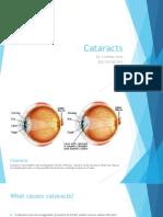 Cataract Fact Sheet Presentation