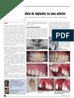 Colocação imediata de implantes na zona anterior - White Clinic