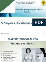INCIDÊNCIAS E PATOLOGIAS DO ABDOME