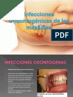 Infecciones Odontologicas de Los Maxilares