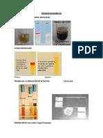 Fundamentos Pruebas Bioquimicas y Medios de Cultivo