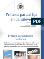 Prótesis parcial fija en Cantiléver