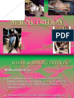 Malnutrition 130504103401 Phpapp02