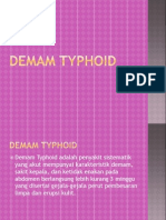 Demam Typhoid