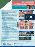 ankiloglosia_posturologia_laser.pdf