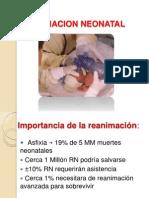 reanimacionneonatal