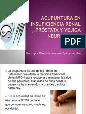 acupuntura y prostata